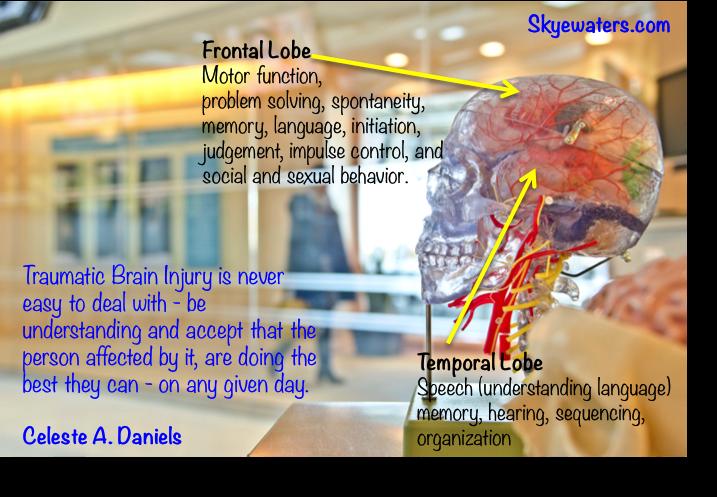 Brain surgery equates brain injury IMO